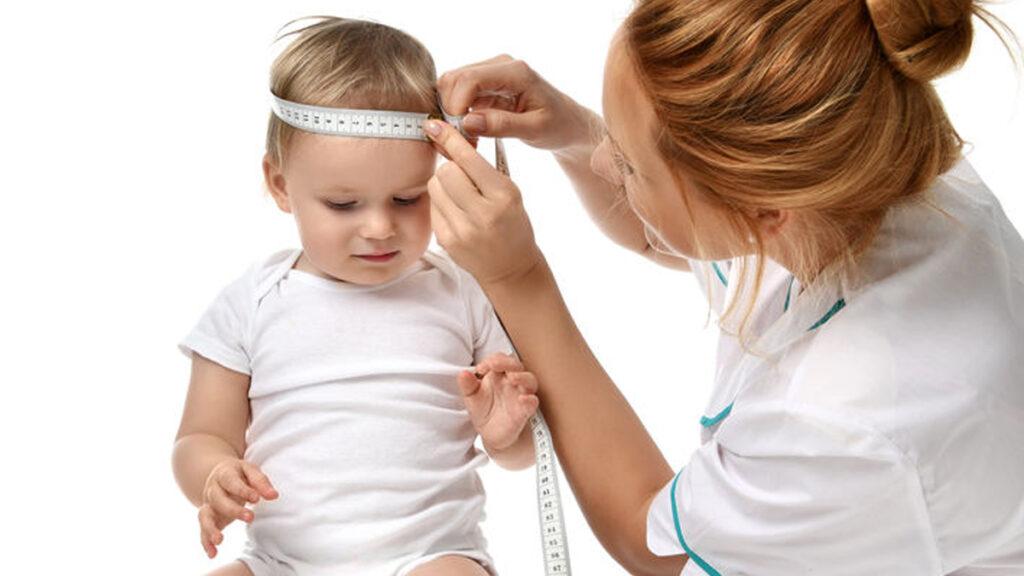 Wat is microcefalie? Komt het vaak voor?